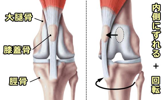膝関節の構造と膝蓋骨内方脱臼の模式図