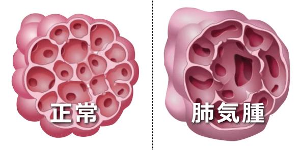 正常な肺胞と肺気腫の肺胞比較図 人医学の領域では、この肺気腫と慢性気管支炎をあわせて「慢性閉塞性