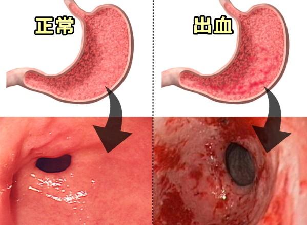 犬の出血性胃腸炎~症状・原因か...